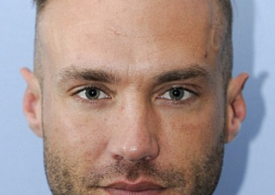 calum_best_before_third_hair_transplant_head_on__large__large